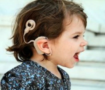 Cochlear Implants Children