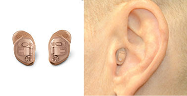 In-The-Canal (ITC) Half Shell Hearing Aid